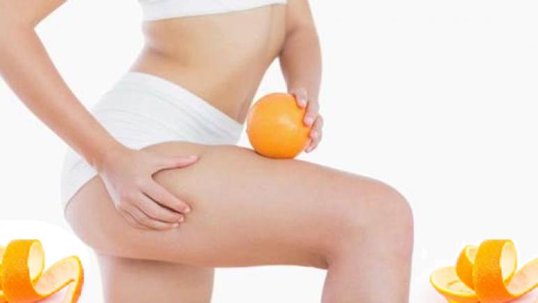 La congestion cellulaire : la cellulite